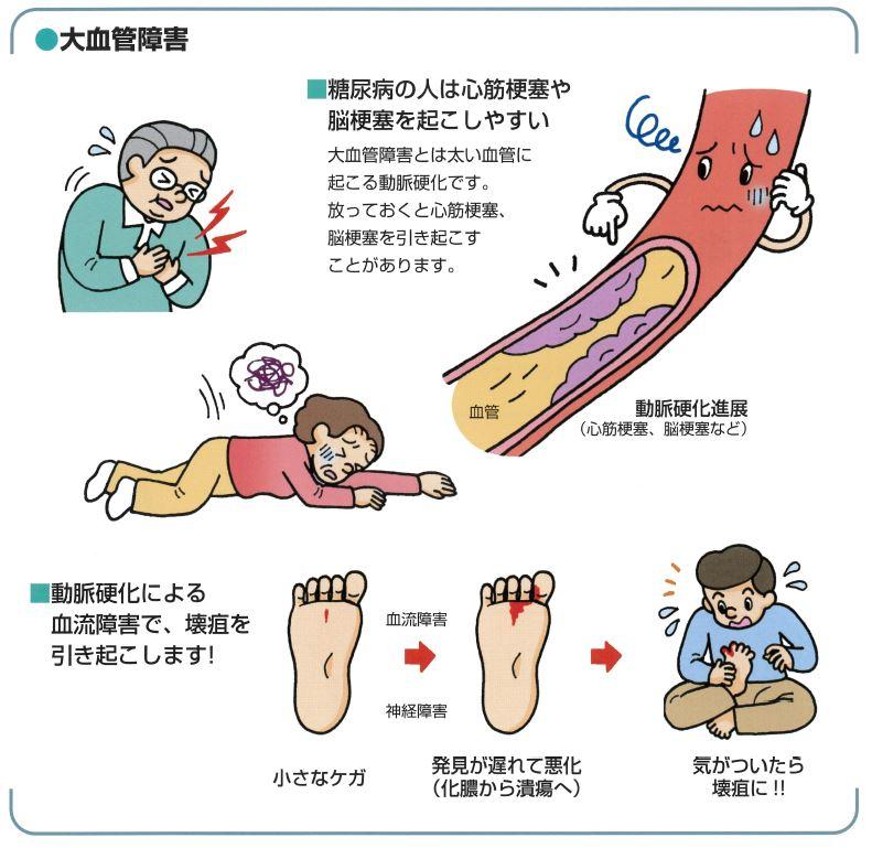 大血管障害